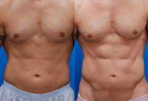men before and after liposuction picture 14