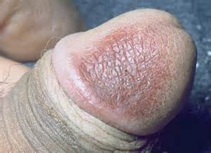 penis head wrinkled with dots picture 1