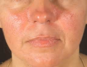 prescriptions taken for acne with lupas disease picture 3