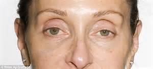 plump skin organic picture 18