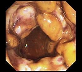 ischemic colon picture 14