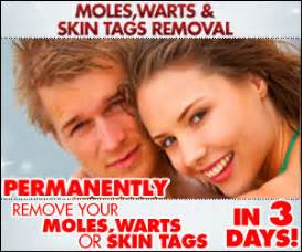 warts moles skin tag removal in ritm picture 1