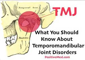 temporomandibular joint syndrome picture 5
