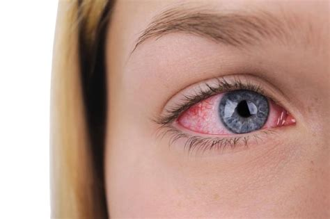 dry, red eyes, liver disease picture 15