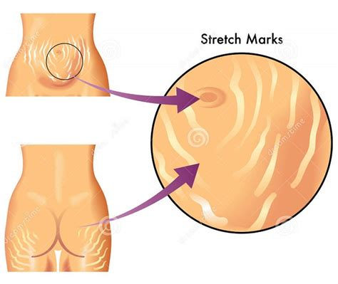 how to know if ypull get stretch marks picture 7