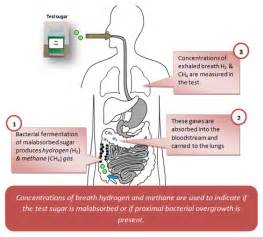 small intestine bacterial overgrowth breath test picture 1