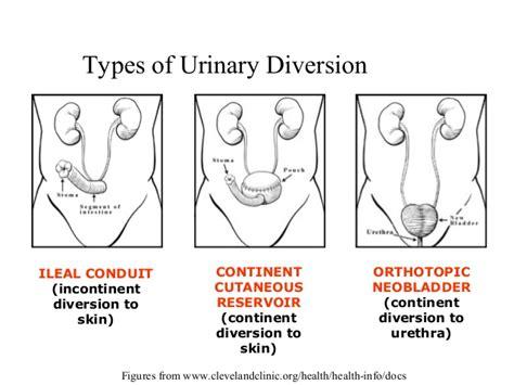 neobladder continent urinary diversion urine bladder drink picture 7