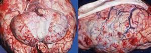 bacterial meningitis penetrates brain blood barrier picture 14
