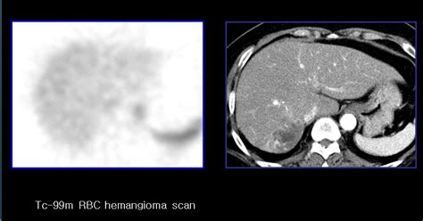 atypical liver hemangioma picture 9