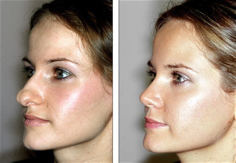 Lip implant picture 5