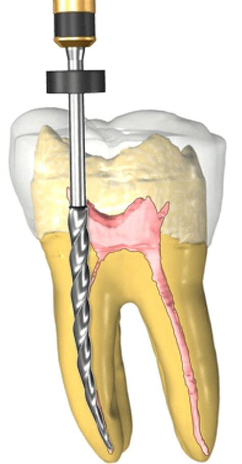teeth rootcanel picture 1