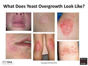 blood sugar yeast rash picture 2