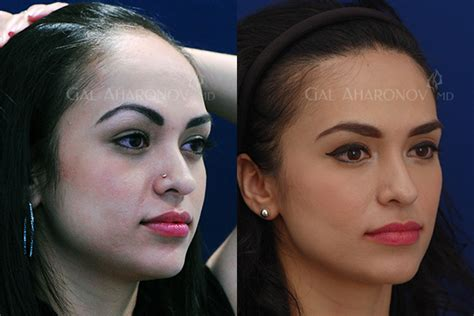 acne scar makeup picture 14