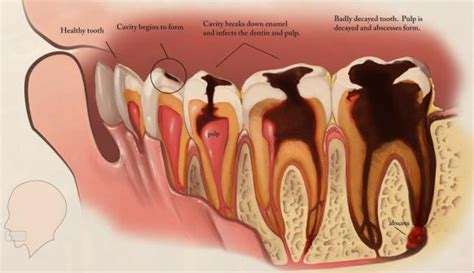 healthy teeth pictures picture 10
