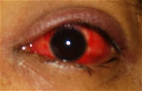 contagious bacterial blood infections picture 6