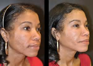 african american skin microdermabrasion picture 15