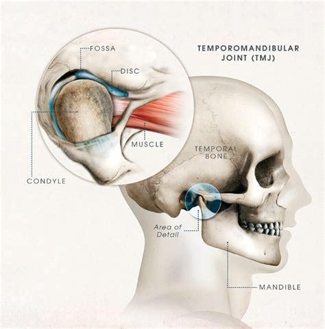 temporomandibular joint popping picture 1