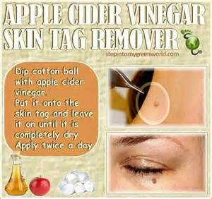 diy skin tag removal picture 2