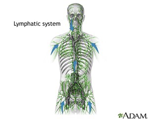 autoimmune thyroiditis disease lymphocytic lymph nodes picture 17