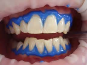 teeth whitening laser picture 6