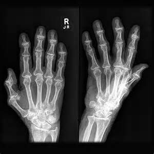 osteojuv cost picture 14