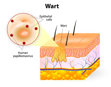 buy remove warts caused by human papilloma virus picture 11