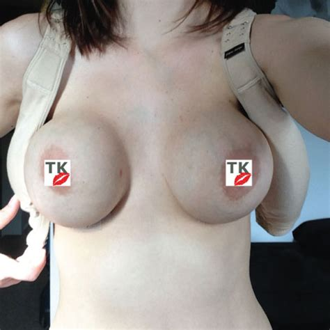 breast augmentation disasters picture 9