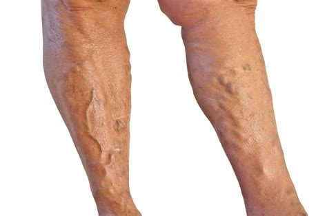 veracose veins and cellulite picture 14