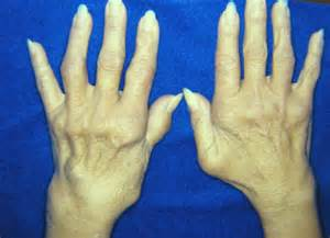 cod liver oil arthrirus picture 10
