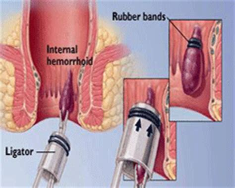 banding of hemorrhoids picture 2
