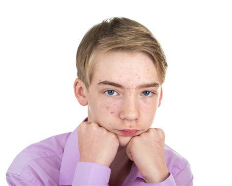 adolescent acne picture 3