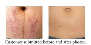 can you fade stretch marks by lifiting weights picture 1