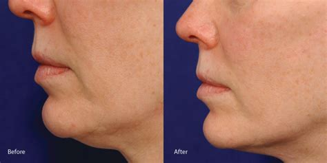 an skin tightening laser nj picture 14
