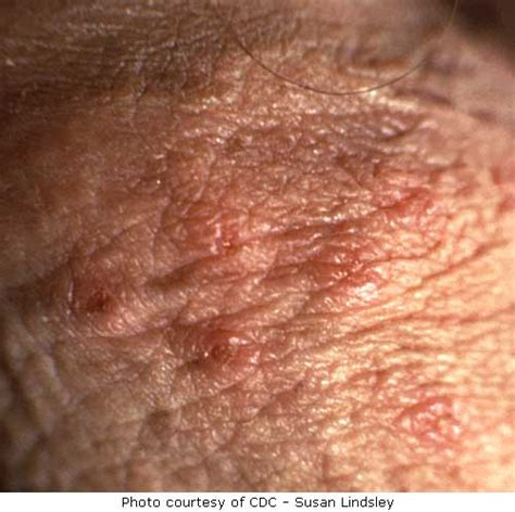 how does herpes simplex cause balls palsey picture 7