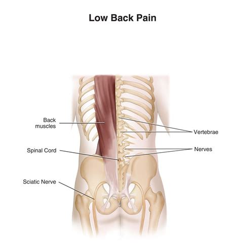 back2life pain picture 3