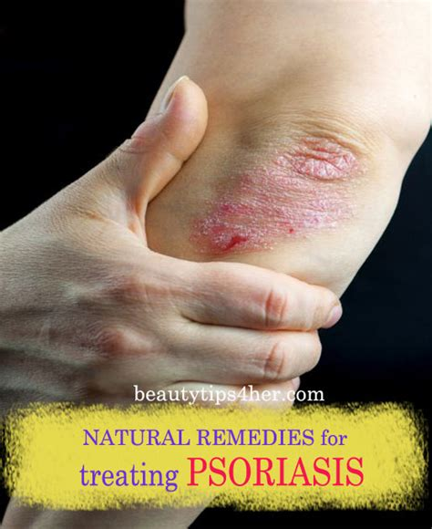 herbal remedies for psoriasis picture 10