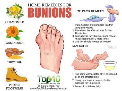 are you put to sleep for bunion surgery picture 7