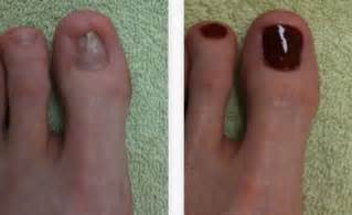 laser treatment fungus toe in florida picture 7