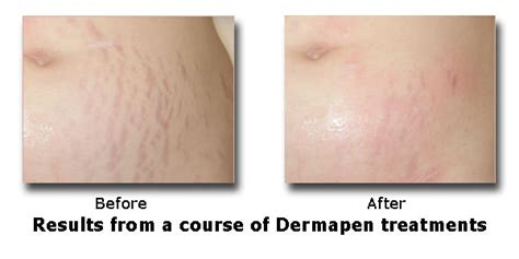 can you have a shower after dermapen treatment picture 4