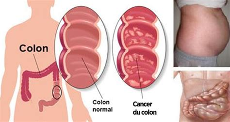 Colon cancer causes picture 9