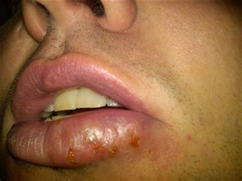 Fever lip blister picture 3