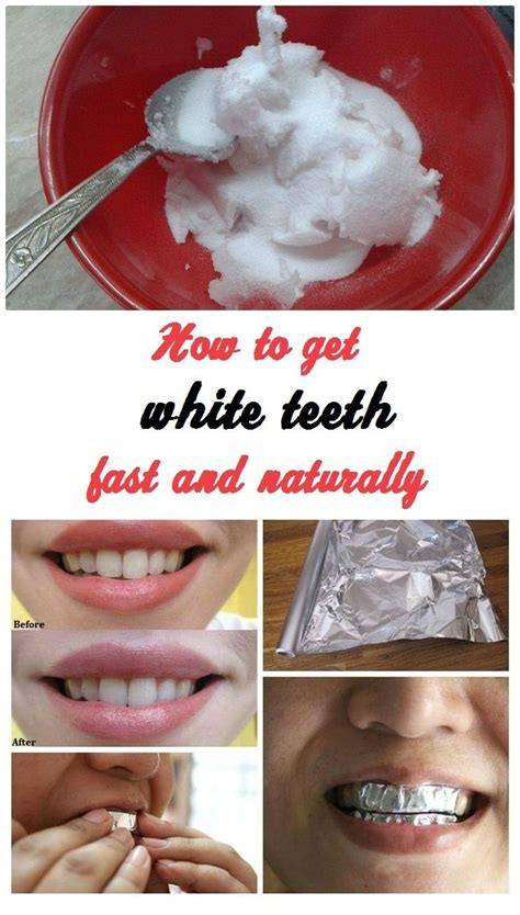 can you whiten teeth naturally picture 14