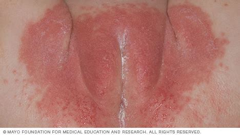 female bacterial infections picture 10