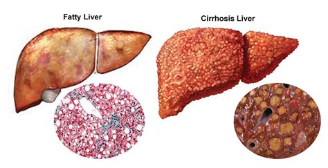 liver diseases picture 6