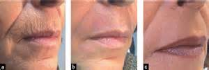 co2 laser versus dermabrasion for acne scars picture 7