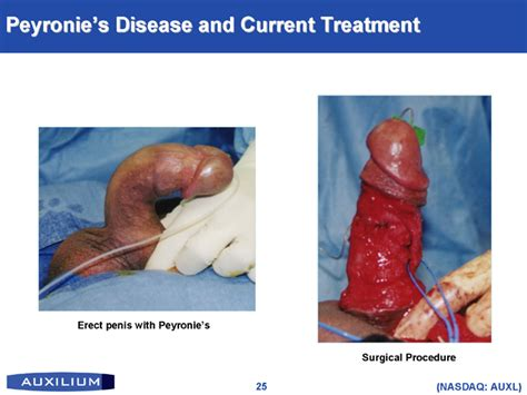 small penile syndrome pictures picture 3