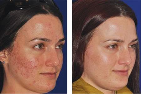 acne graves disease picture 1