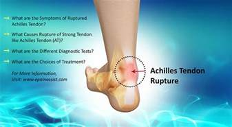 ankle joint effusion and ruptured archilles tendon picture 8