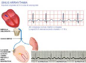 fast heart beat and dietrine picture 14