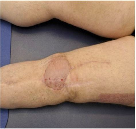 mrsa knee joint surgery picture 3